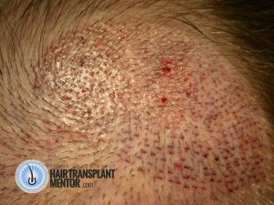 recipient sites hair transplant