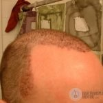hair-transplant-repair-surgery-2-day-2-right-temple-point