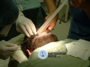hair-transplant-repair-surgery-2-day-of-surgery-donor-strip-prep-3