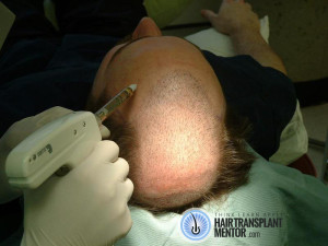 recipient scalp