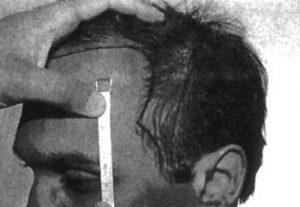 anterior scalp