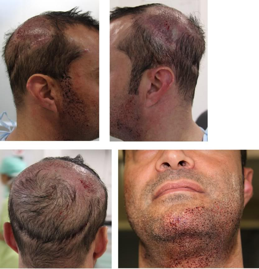 Beard Transplant Procedure Cost Side Effects Before And