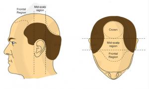 crown of head