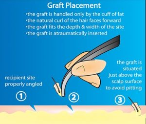 graft-placement-drawing