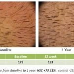 Histogen results one year into trials. Is this the hair restoration future?