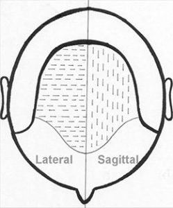 sagittal incisions lateral incisions