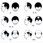 norwood-classification-system hair transplant technology