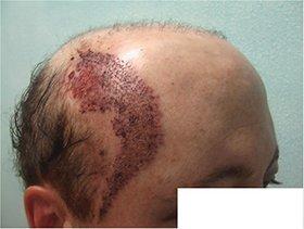 pubic hair transplant