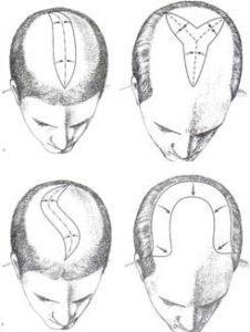 scalp reduction