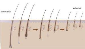 terminal-hair