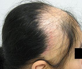traction-alopecia