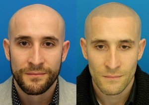 tricopigmentation-smp