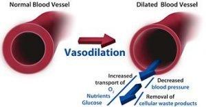 vasodilation