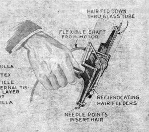 hair transplant machine