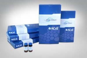 Acell hair transplant