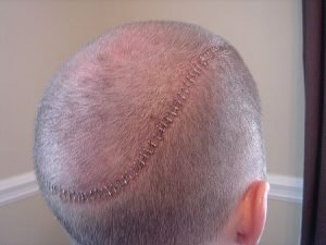 follicular unit strip surgery