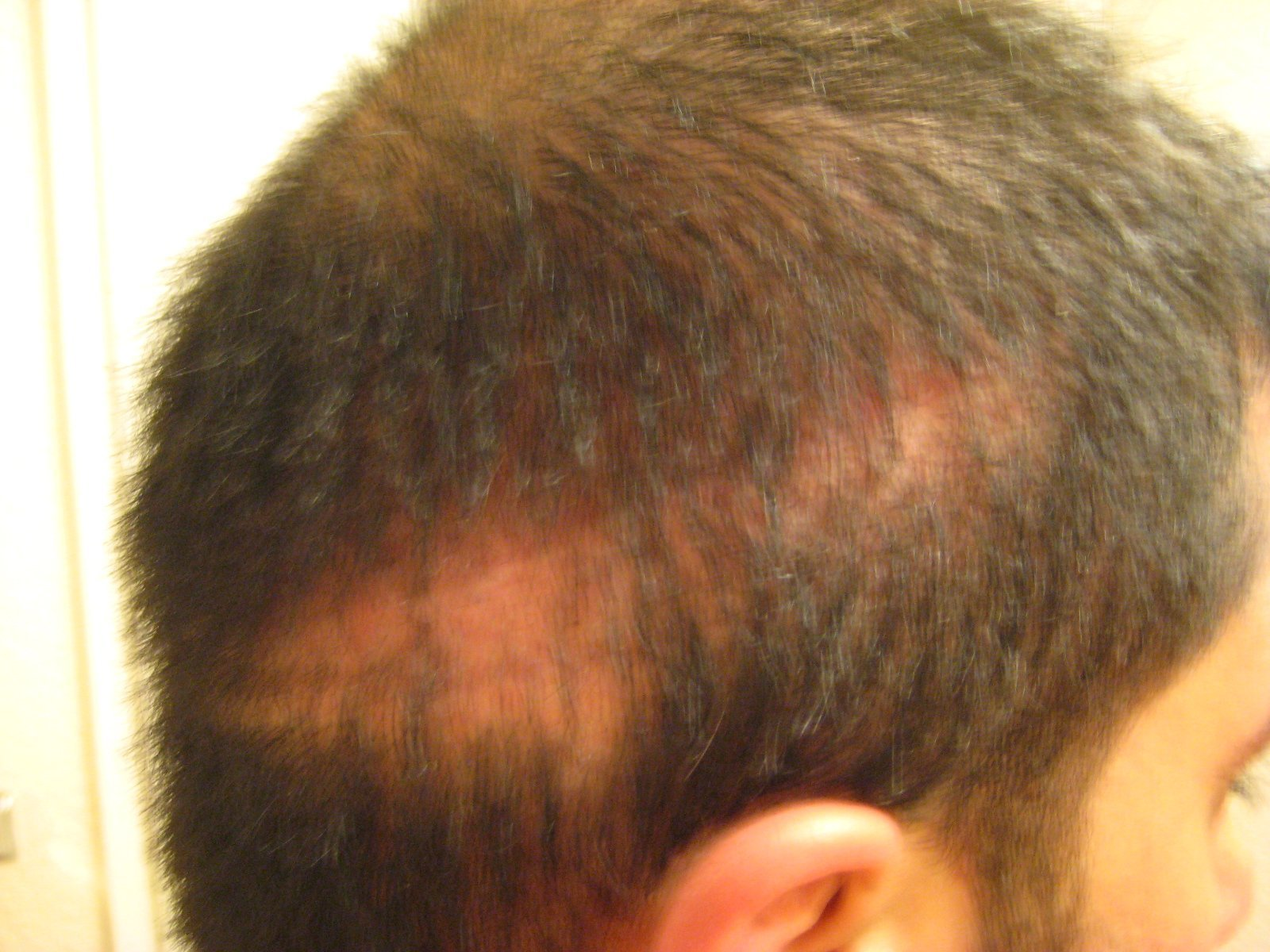 Shock loss learn how hair transplants cause shock loss shock loss in the donor zone after strip surgery urmus Gallery