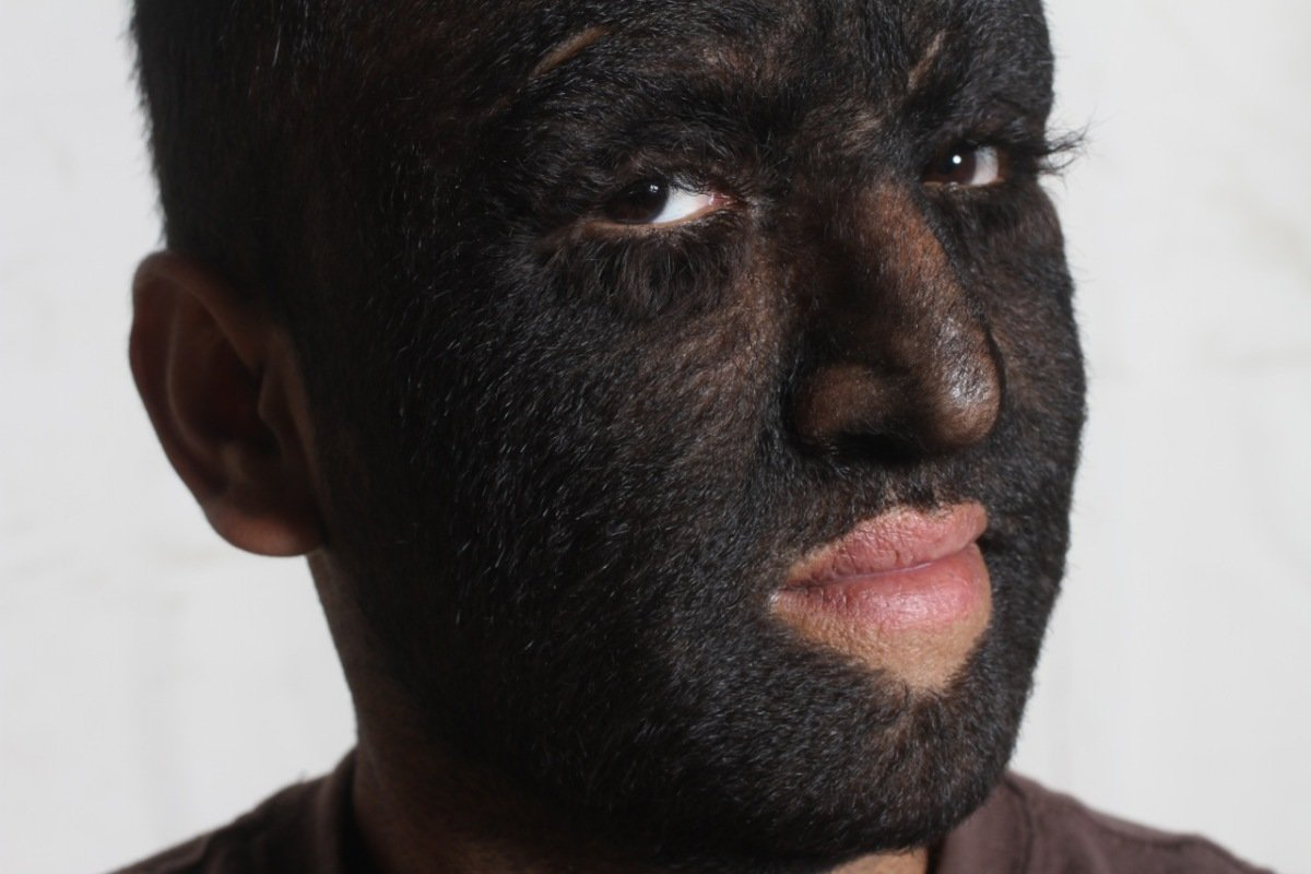 Hypertrichosis Symptoms, Diagnosis, Treatments and Causes ...