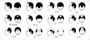 crown hair loss