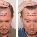 electrolysis hair transplant repair