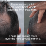 hair-transplant-results-video-prp-fue