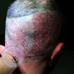 fue hair transplant surgery