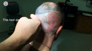 FUE Hair Transplant Surgery – Shapiro Medical #5!