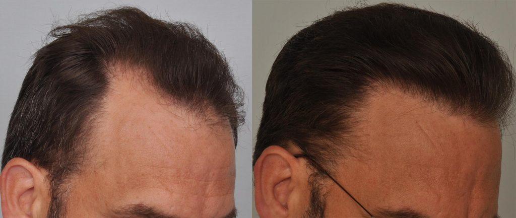 atlanta-hair-transplant-hairline