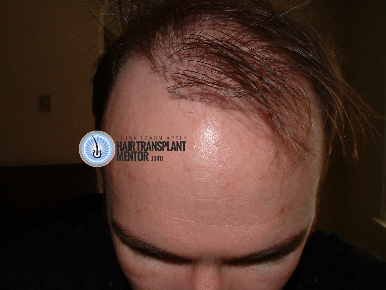 Have You Had Bad Hair Transplant Results