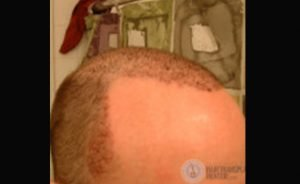 Hair Transplant Recovery; Is This Normal???