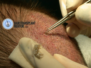 hair-transplant-repair-surgery-3-graft-placement-in-crown