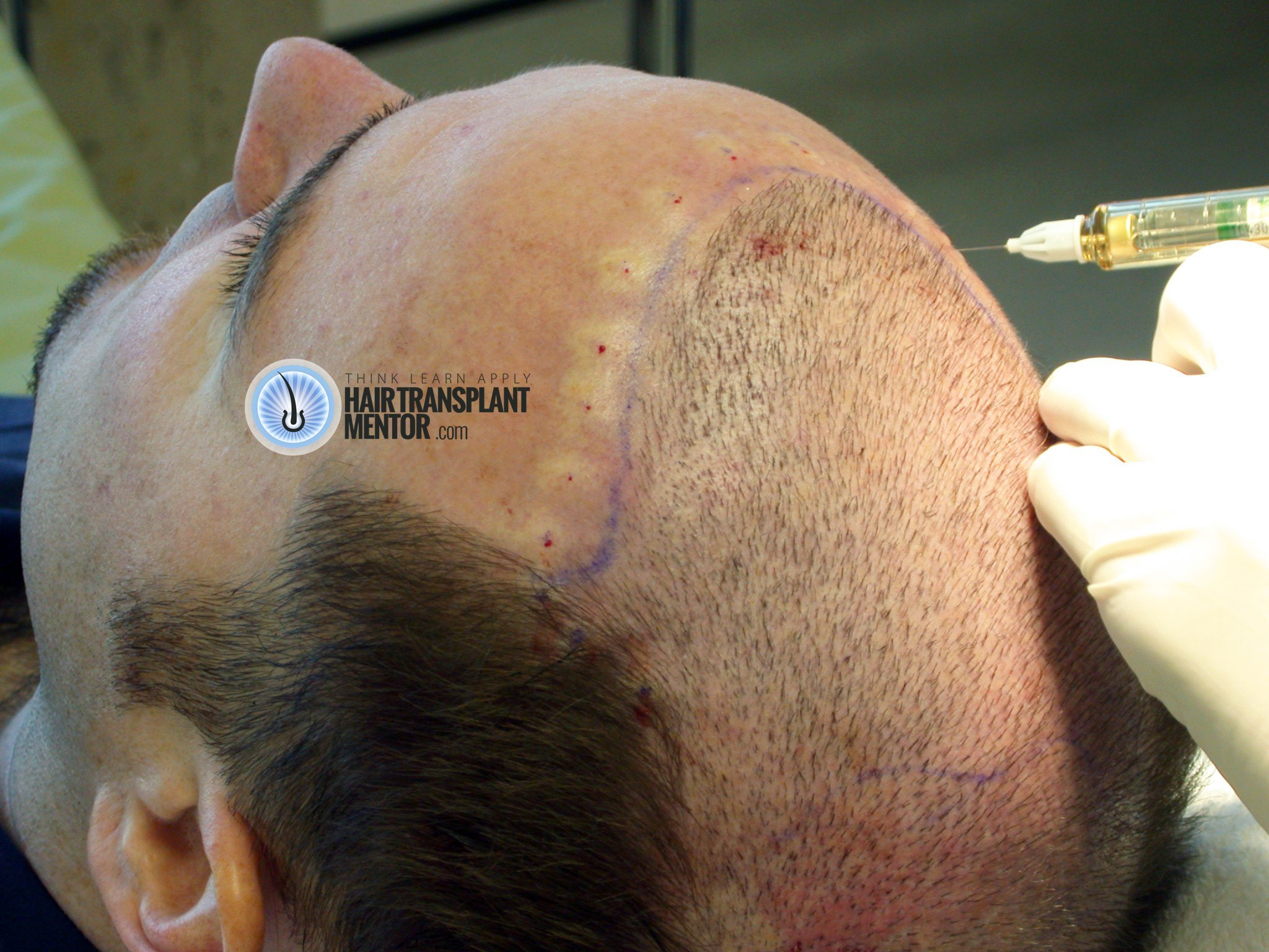 Looking For Hair Transplant Repair Results