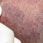 hair transplant repair results