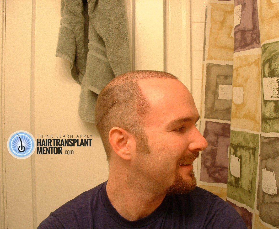 Shaved heads stapled