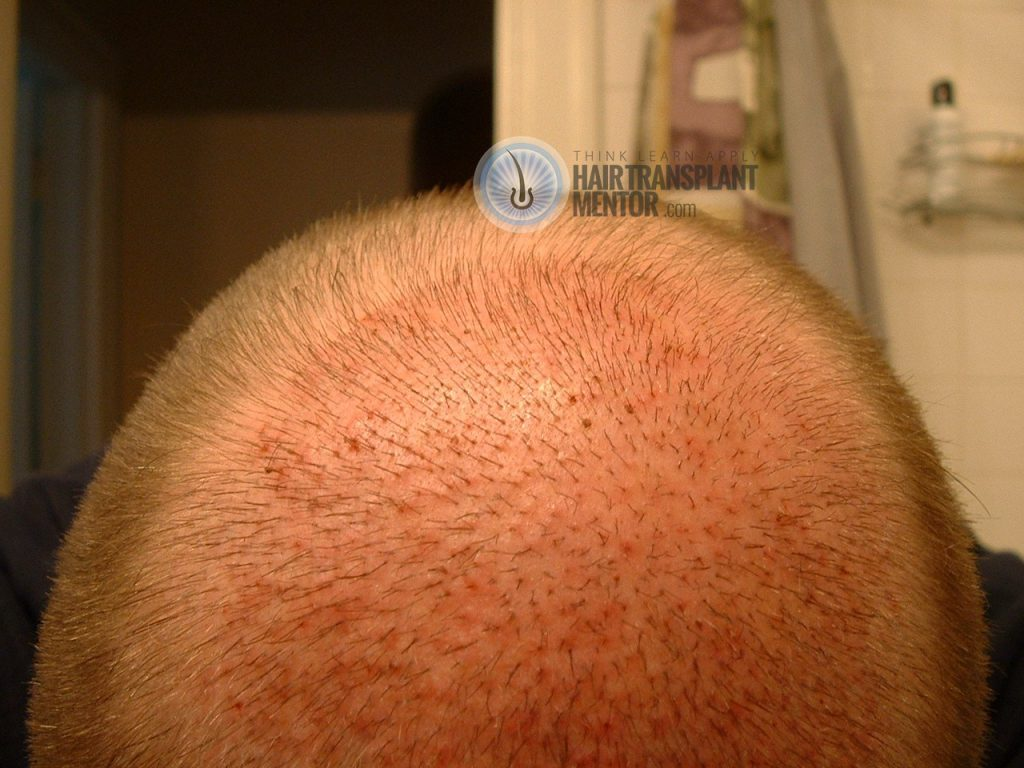 hair transplant healing time can be fast.