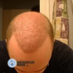 hair transplant healing, redness is already reduced.