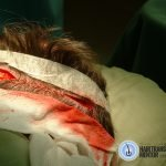 surgical staples are used to close the donor wound.