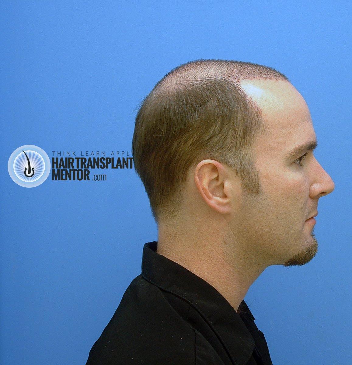 The Hair Transplant Mentor His Third Strip Hair Transplant