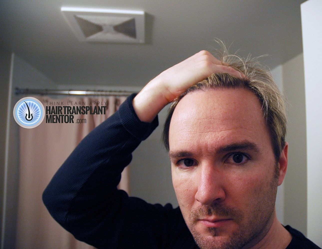 Want To See An Amazing Hair Transplant Result