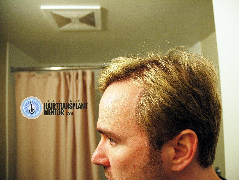 first haircut after hair transplant   haircuts models ideas