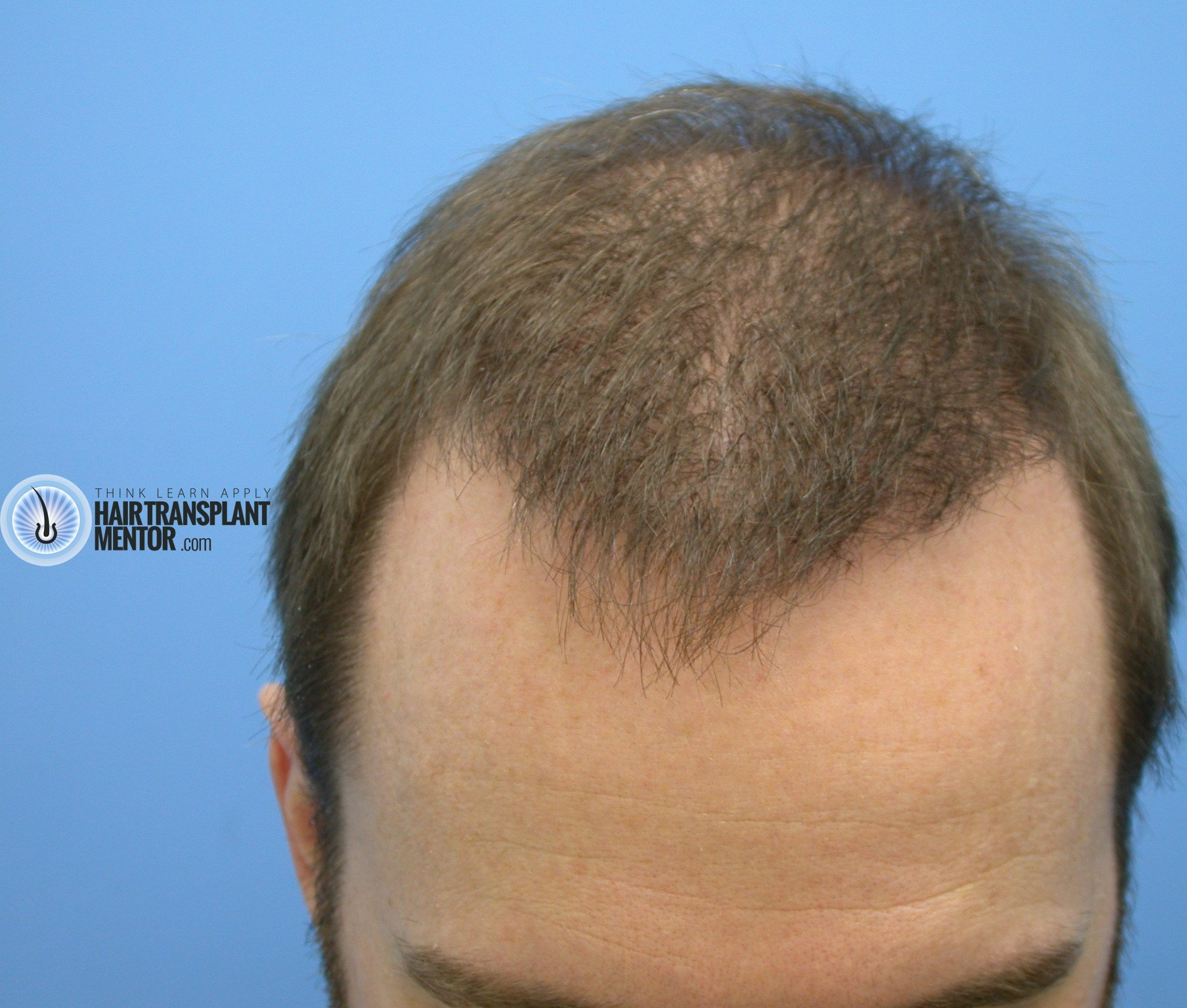 Hair Transplant Repair Surgery