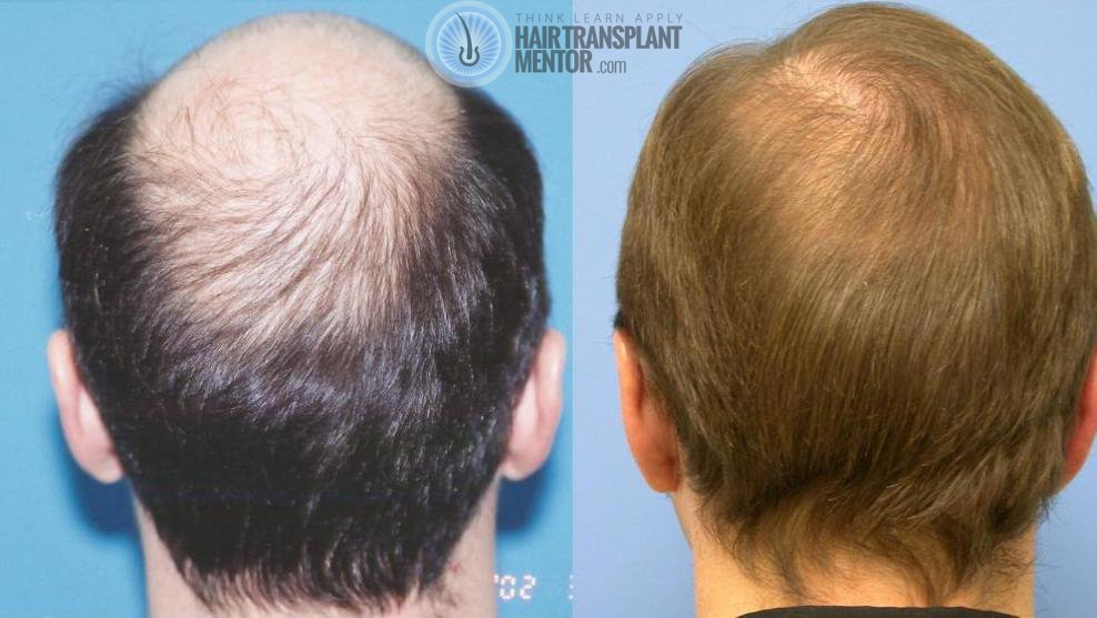We Can Expect Additional Regrowth And More Coverage To Be Visible In The Next Six Months My World Hair Transplant