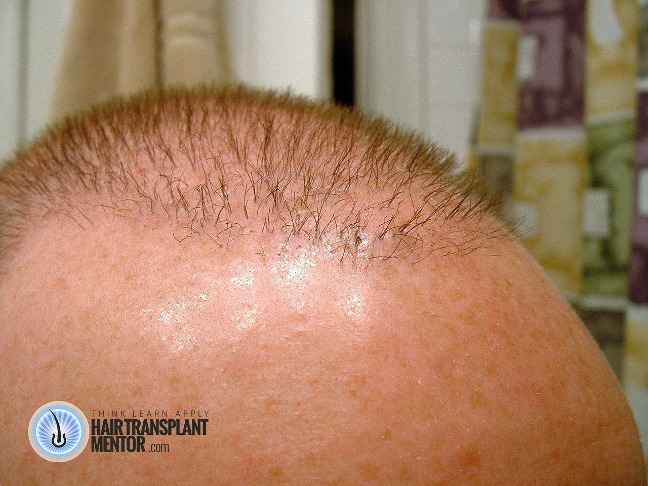 Hair Transplant Repair Update