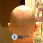 hair transplant repair two months donor area