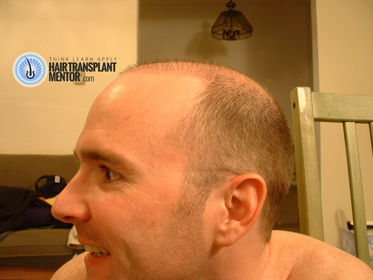 Hair Transplant Haircut The Surgical Aftermath