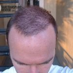 hair transplant repair cost is higher is you screw up.