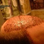 hair transplant repair surgery one day two right profile