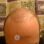 hair restoration repair progress