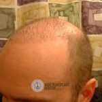 hair restoration repair of left hairline.