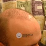 hair restoration repair of right hairline.
